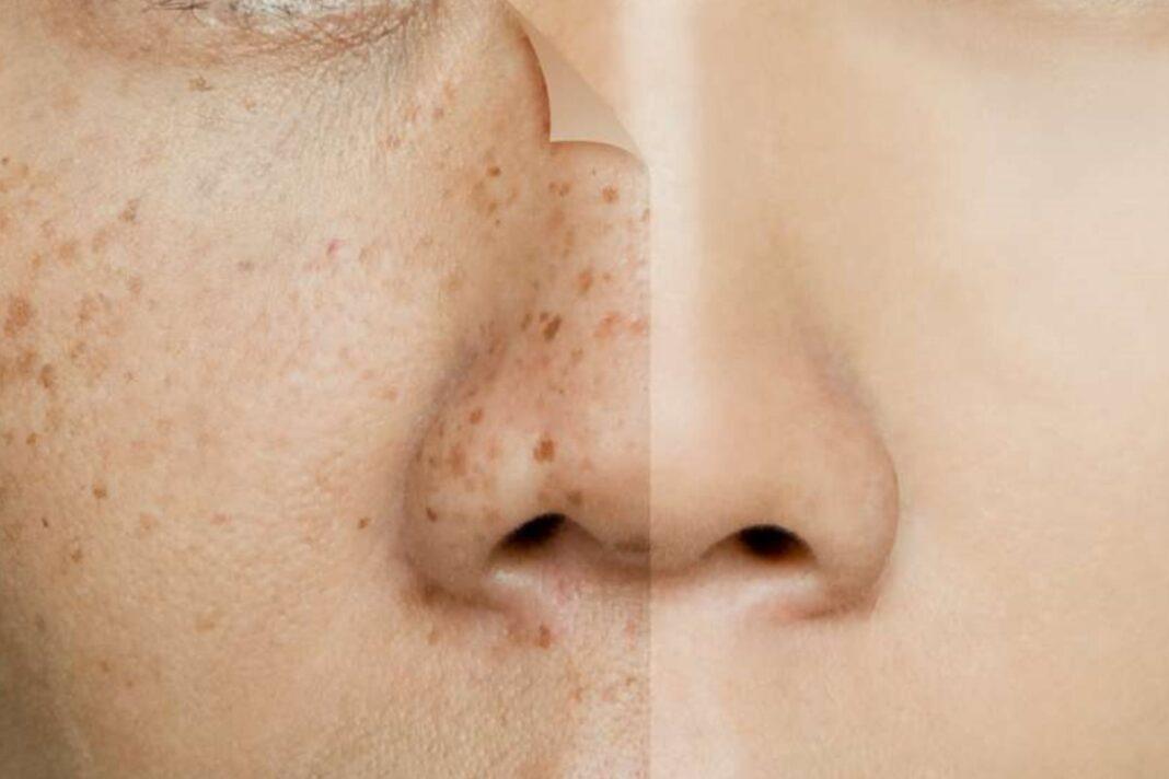 cremas despigmentantes para manchas en la cara