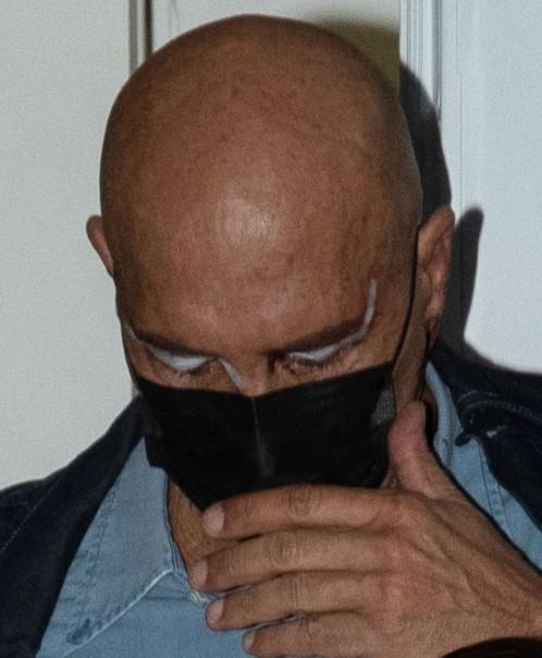 kiko matamoros operacione estética ojos