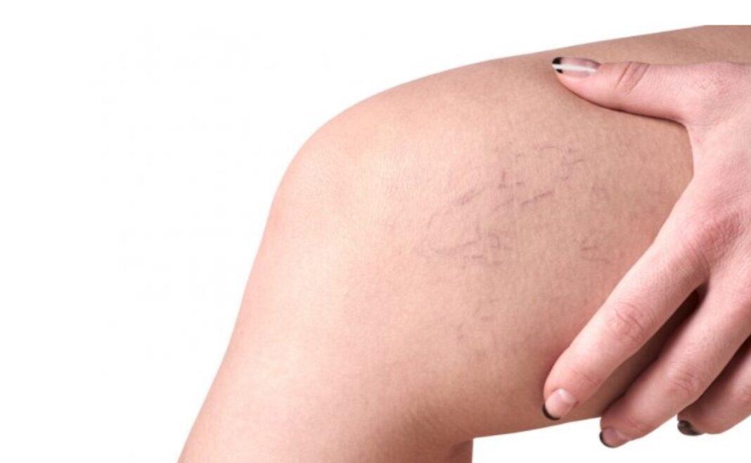 El novedoso tratamiento para las varices y que es poco invasivo para la piel